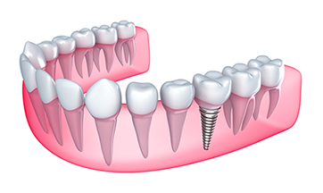 Implant Dentistry Odenton MD
